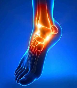 ankle-replacement-podiatrist-peoria-az