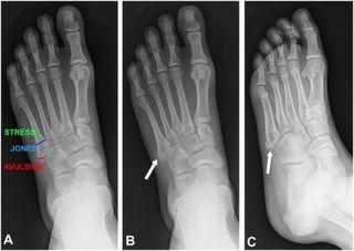 foot_fracture_podiatrist_peoria_az