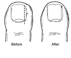 ingrown-toenails-foot-doctor-ankle-peoria-az