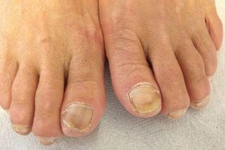 toenail-fungus-podiatrist-peoria-az