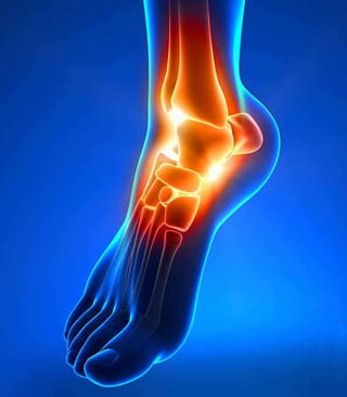ankle-replacement-podiatrist-peoria-az