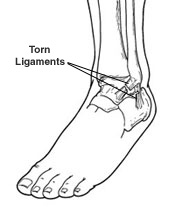 ankle-sprain-peoria-az-foot-doctor