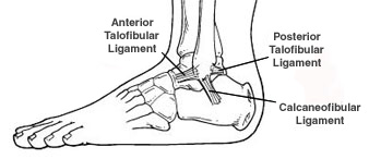 ankle-sprain-glendale-az-foot-doctor
