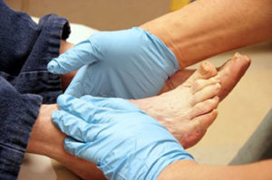diabetic-foot-care-podiatrist-peoria-az
