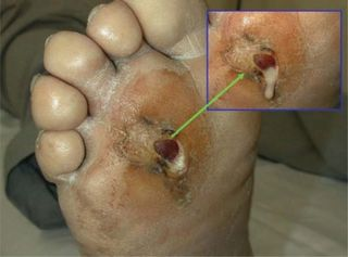 diabetic-foot-care-peoria-az.jpg