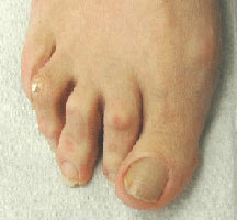 hammertoes-peoria-foot-and-ankle