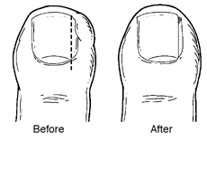 ingrown-toenails-foot-doctor-ankle-peoria-az