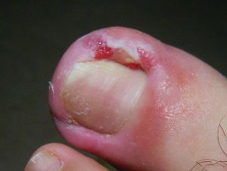 ingrown-toenails-podiatrist-peoria-az