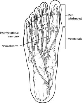 neuroma-foot-ankle-doctor-peoria-az